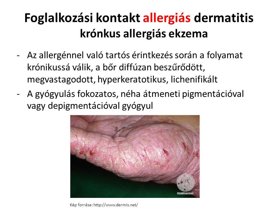 Foglalkozási kontakt allergiás dermatitis krónkus allergiás ekzema -Az allergénnel való tartós érintkezés során a folyamat krónikussá válik, a bőr diffúzan beszűrődött, megvastagodott, hyperkeratotikus, lichenifikált -A gyógyulás fokozatos, néha átmeneti pigmentációval vagy depigmentációval gyógyul Kép forrása: http://www.dermis.net/