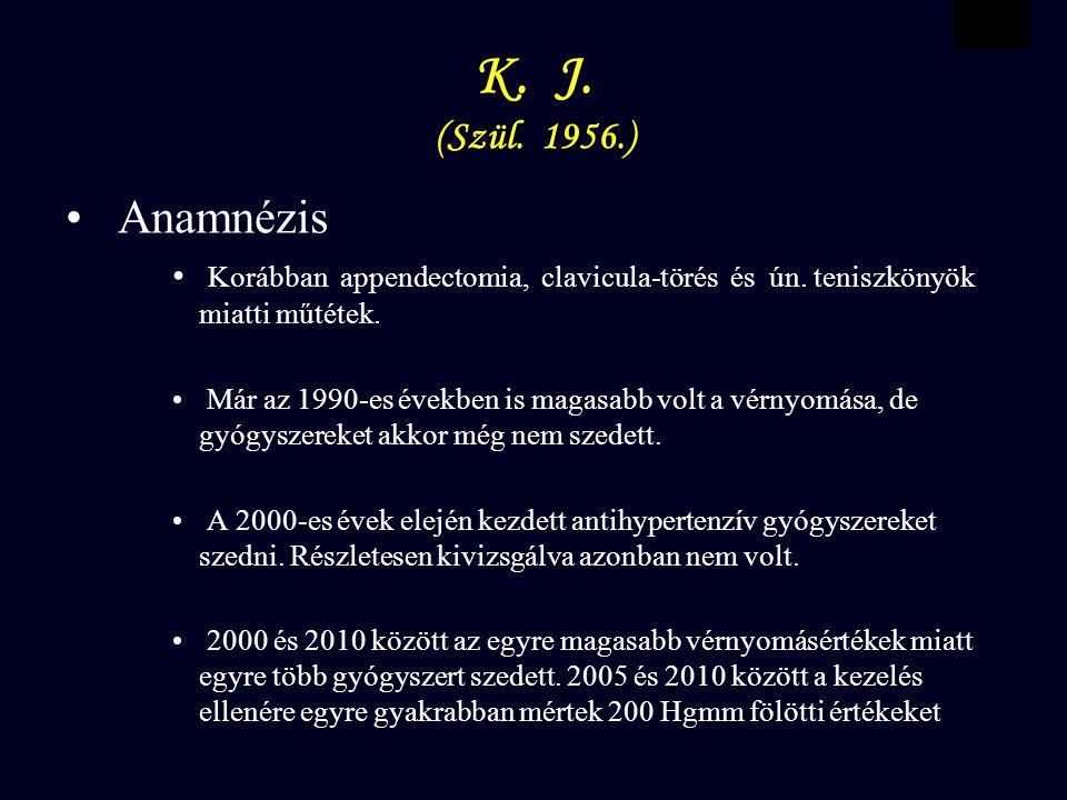 VBWG K. J. (Szül. 1956.) Anamnézis Korábban appendectomia, clavicula-törés és ún.