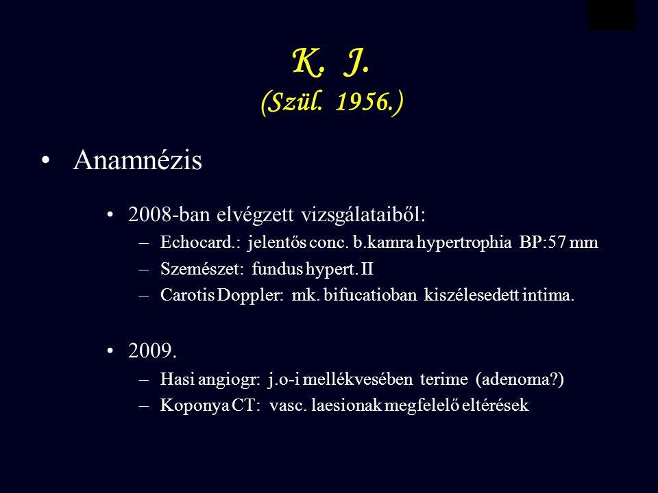 VBWG K. J. (Szül. 1956.) Anamnézis 2008-ban elvégzett vizsgálataiből: – Echocard.: jelentős conc.