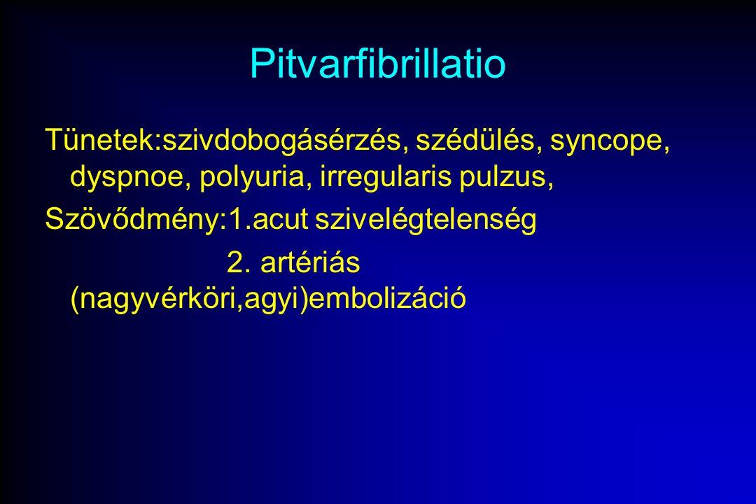 Pitvarfibrillatio Tünetek:szivdobogásérzés, szédülés, syncope, dyspnoe, polyuria, irregularis pulzus, Szövődmény:1.acut szivelégtelenség 2.