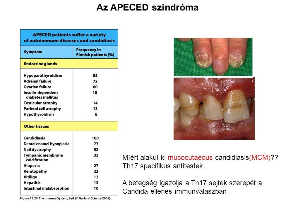 Az APECED szindróma Míért alakul ki mucocutaeous candidiasis(MCM) .