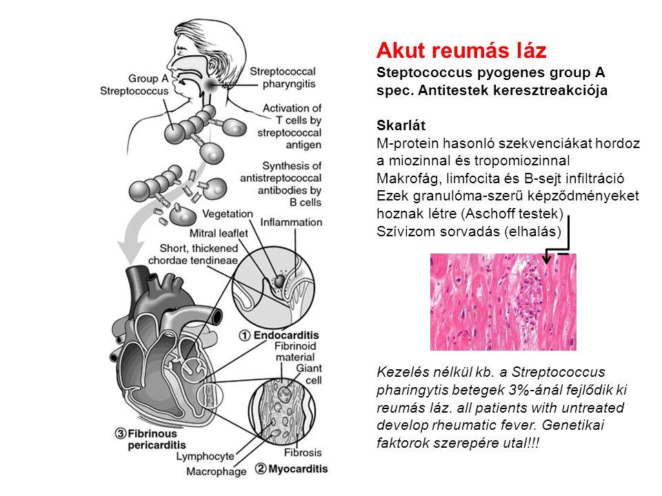 Akut reumás láz Steptococcus pyogenes group A spec.