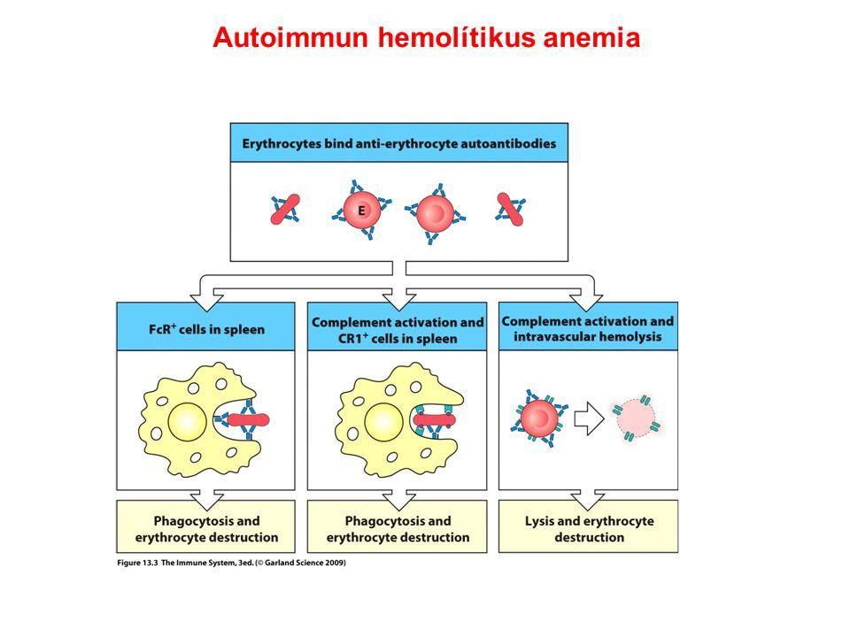 Autoimmun hemolítikus anemia