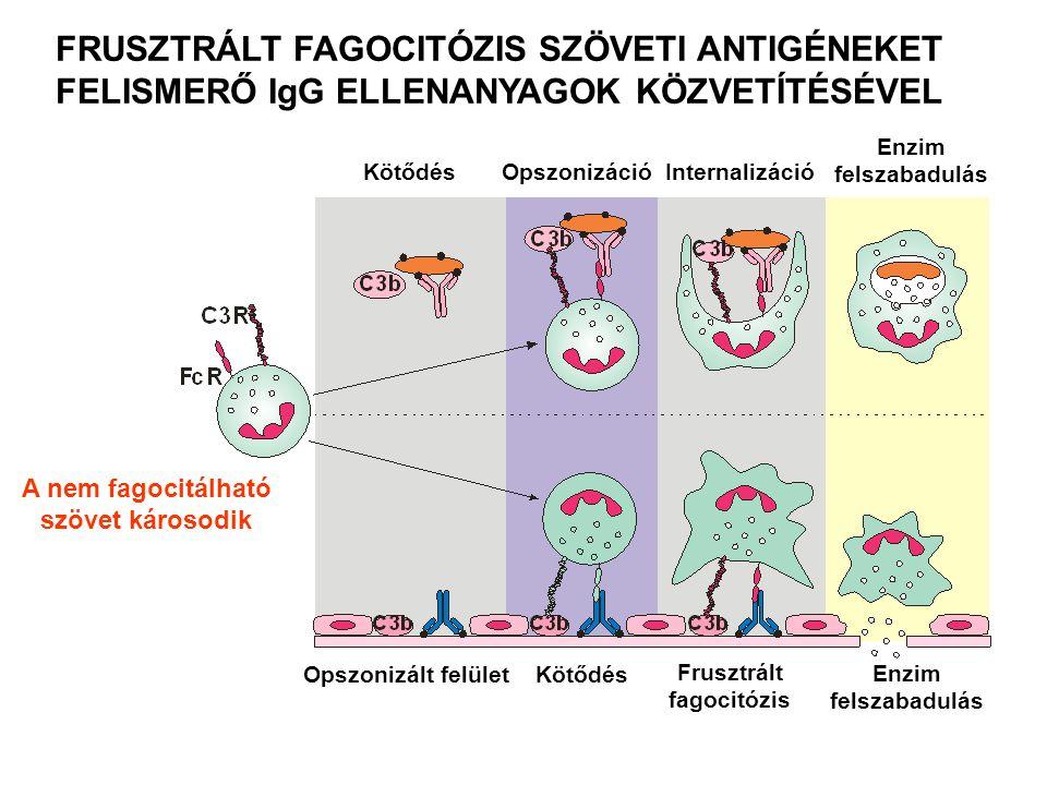 A nem fagocitálható szövet károsodik FRUSZTRÁLT FAGOCITÓZIS SZÖVETI ANTIGÉNEKET FELISMERŐ IgG ELLENANYAGOK KÖZVETÍTÉSÉVEL Kötődés Opszonizáció Internalizáció Opszonizált felület Kötődés Enzim felszabadulás Frusztrált fagocitózis Enzim felszabadulás