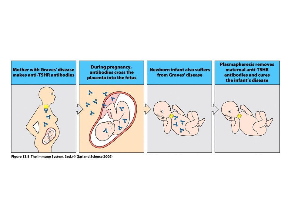 Hashimoto kór – hipotireózis (antibodies and effector T cells) Limfocita infiltráció, extranodális limfoid szövetek.