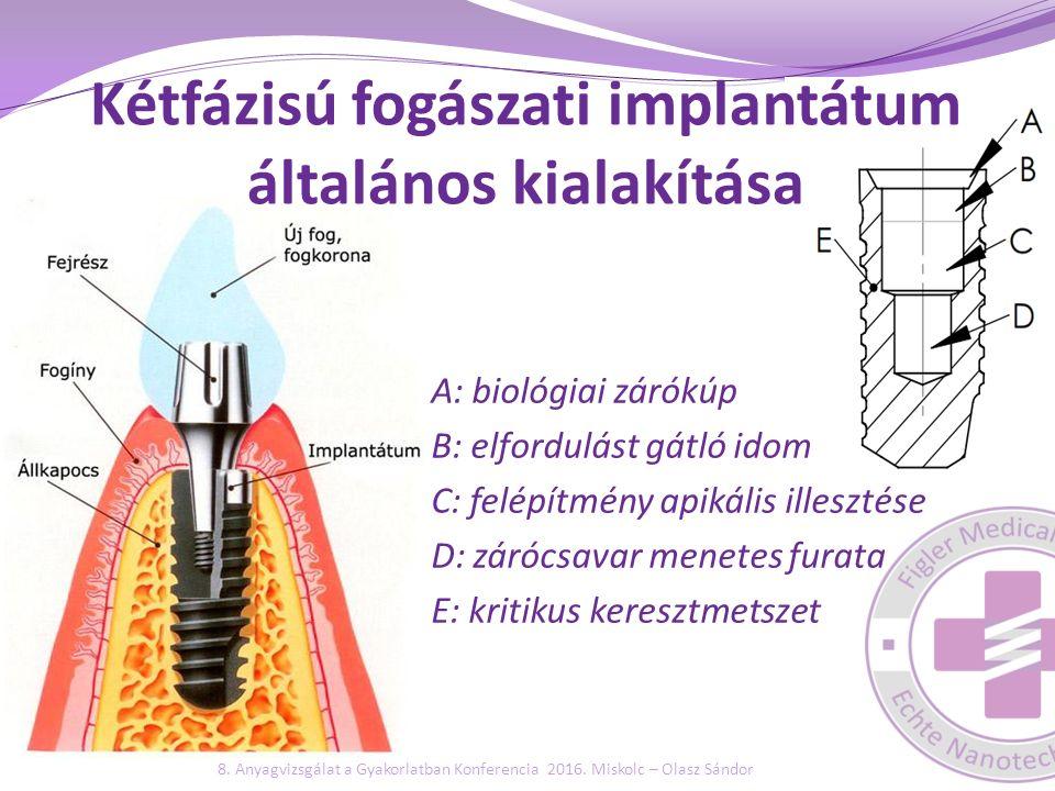 Kétfázisú fogászati implantátum általános kialakítása A: biológiai zárókúp B: elfordulást gátló idom C: felépítmény apikális illesztése D: zárócsavar