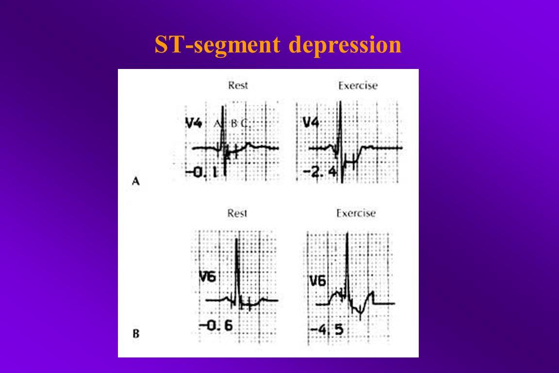 ST-segment depression