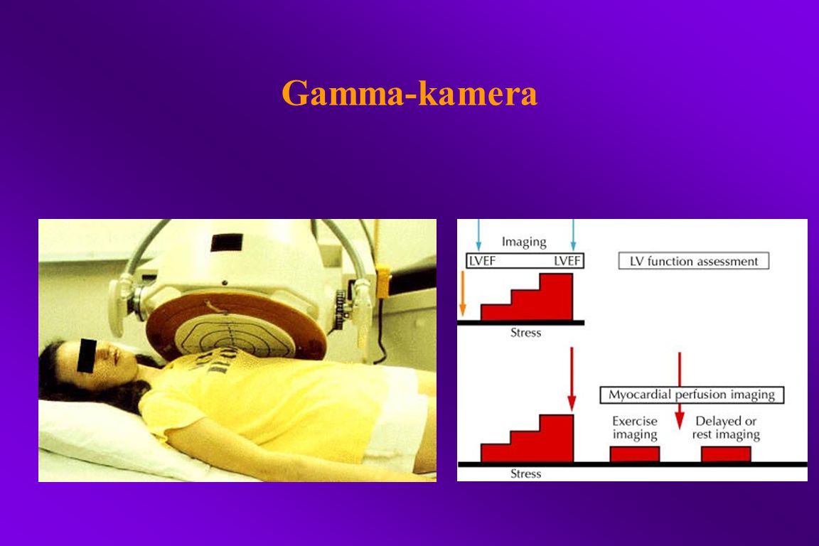 Gamma-kamera