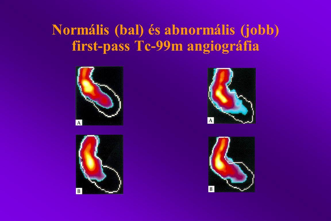Normális (bal) és abnormális (jobb) first-pass Tc-99m angiográfia