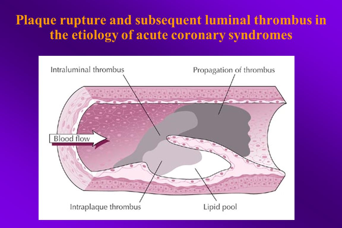 Plaque rupture and subsequent luminal thrombus in the etiology of acute coronary syndromes