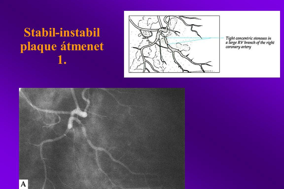 Stabil-instabil plaque átmenet 1.