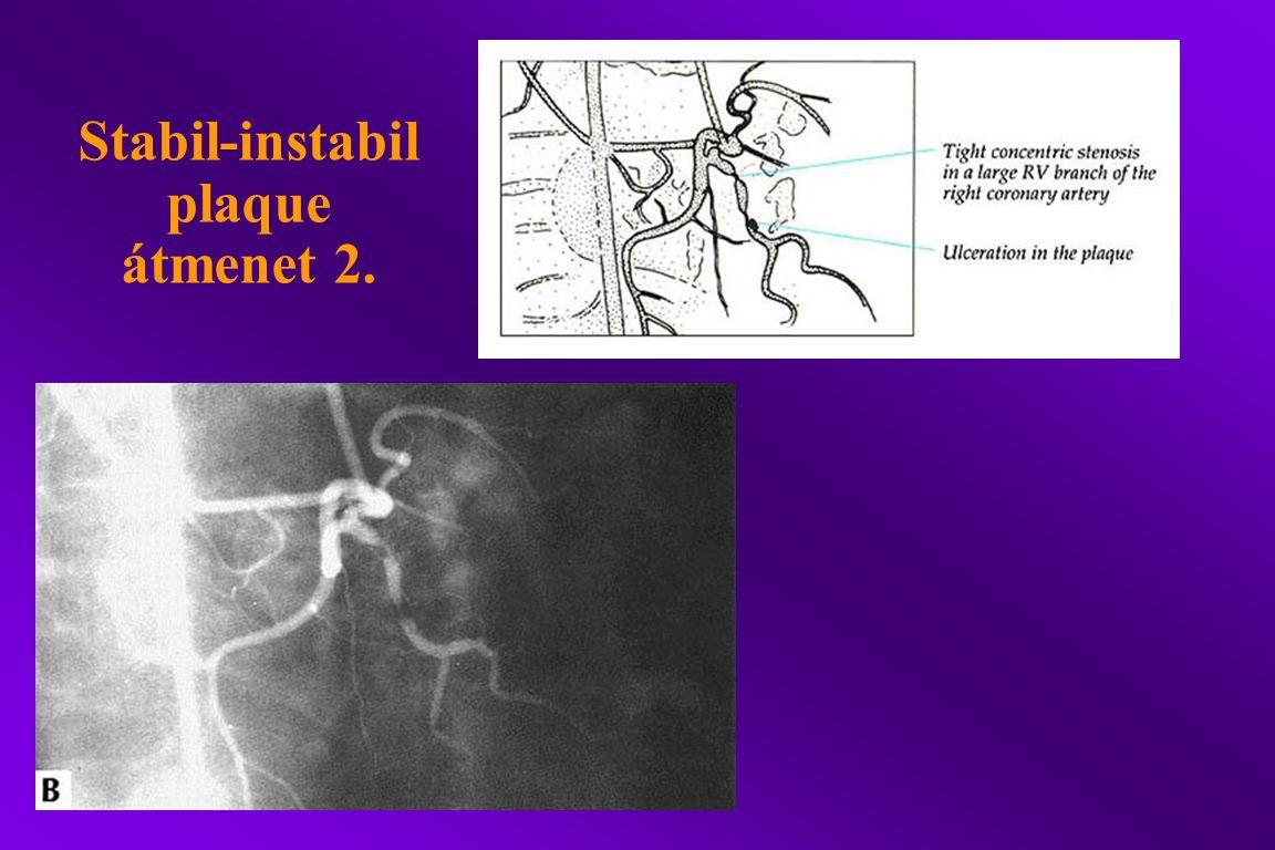 Stabil-instabil plaque átmenet 2.