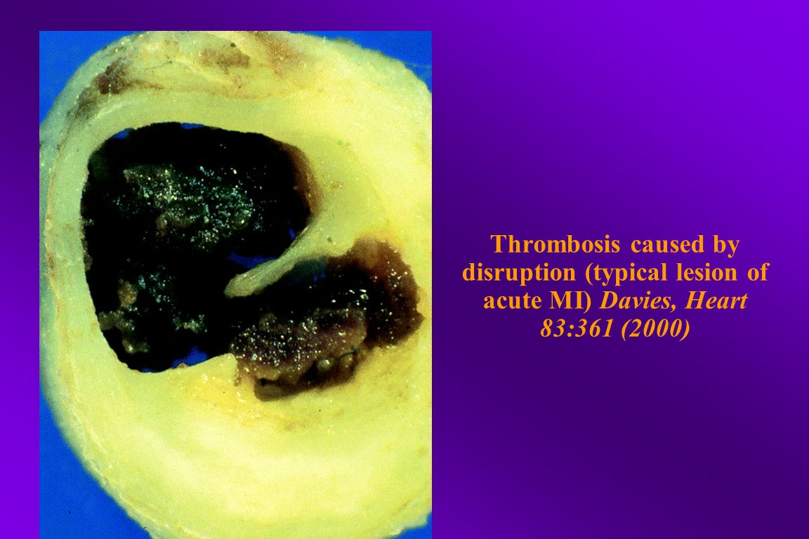 Thrombosis caused by disruption (typical lesion of acute MI) Davies, Heart 83:361 (2000)