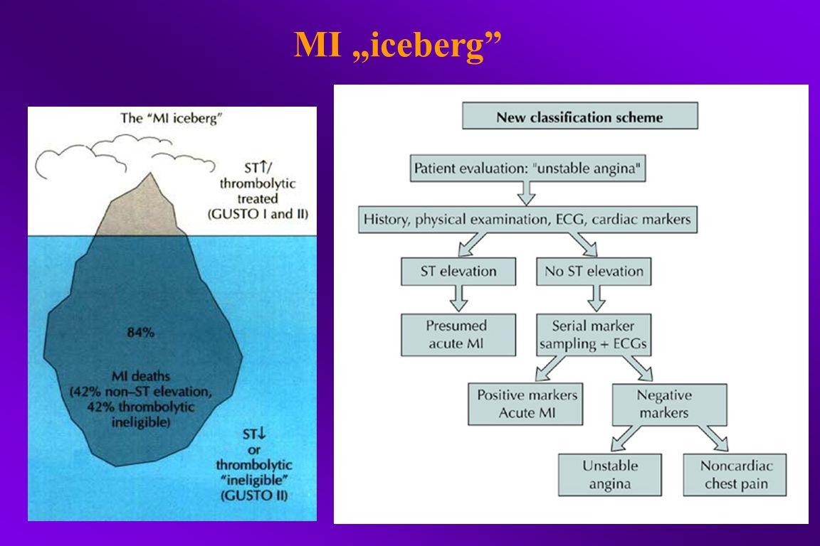 "MI ""iceberg"