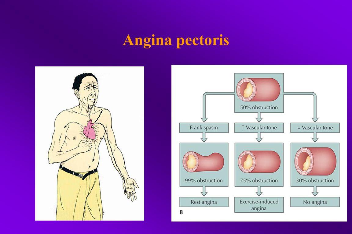 Activities associated with angina