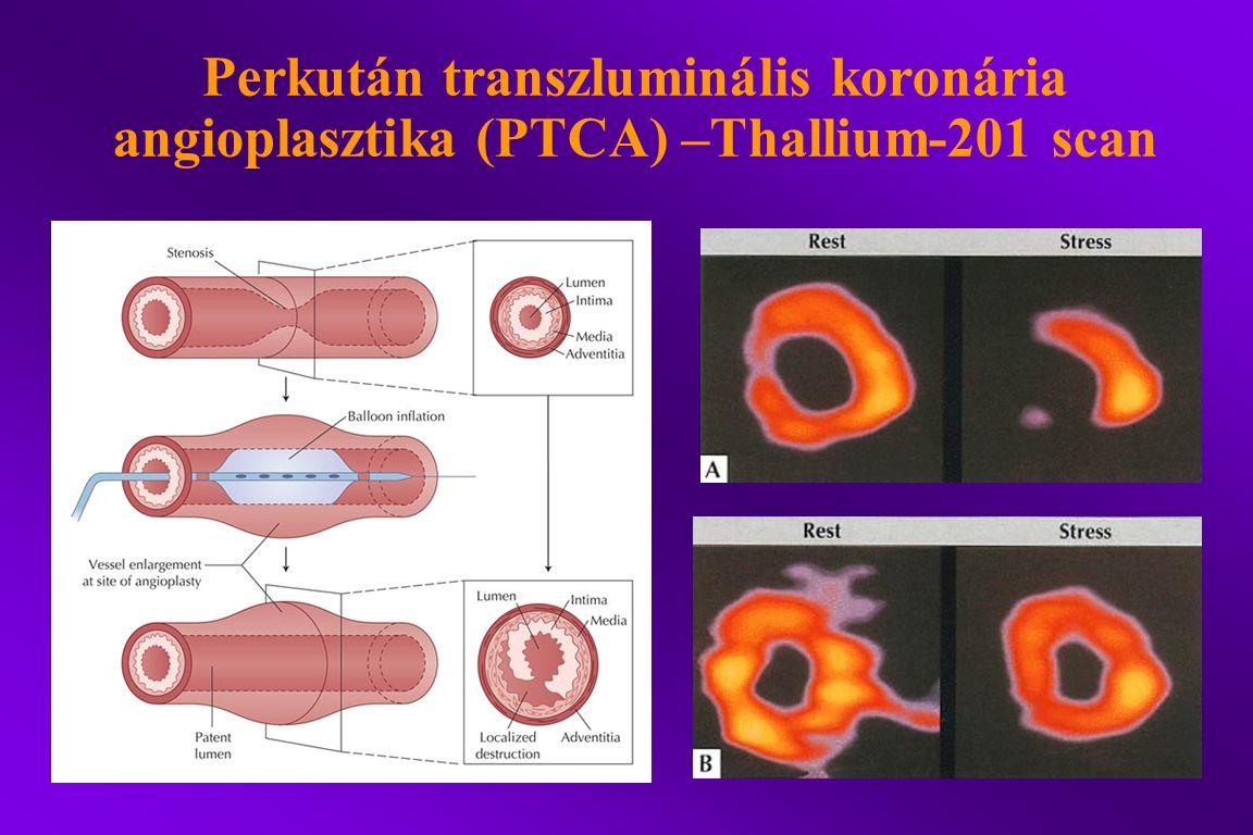 Perkután transzluminális koronária angioplasztika (PTCA) –Thallium-201 scan