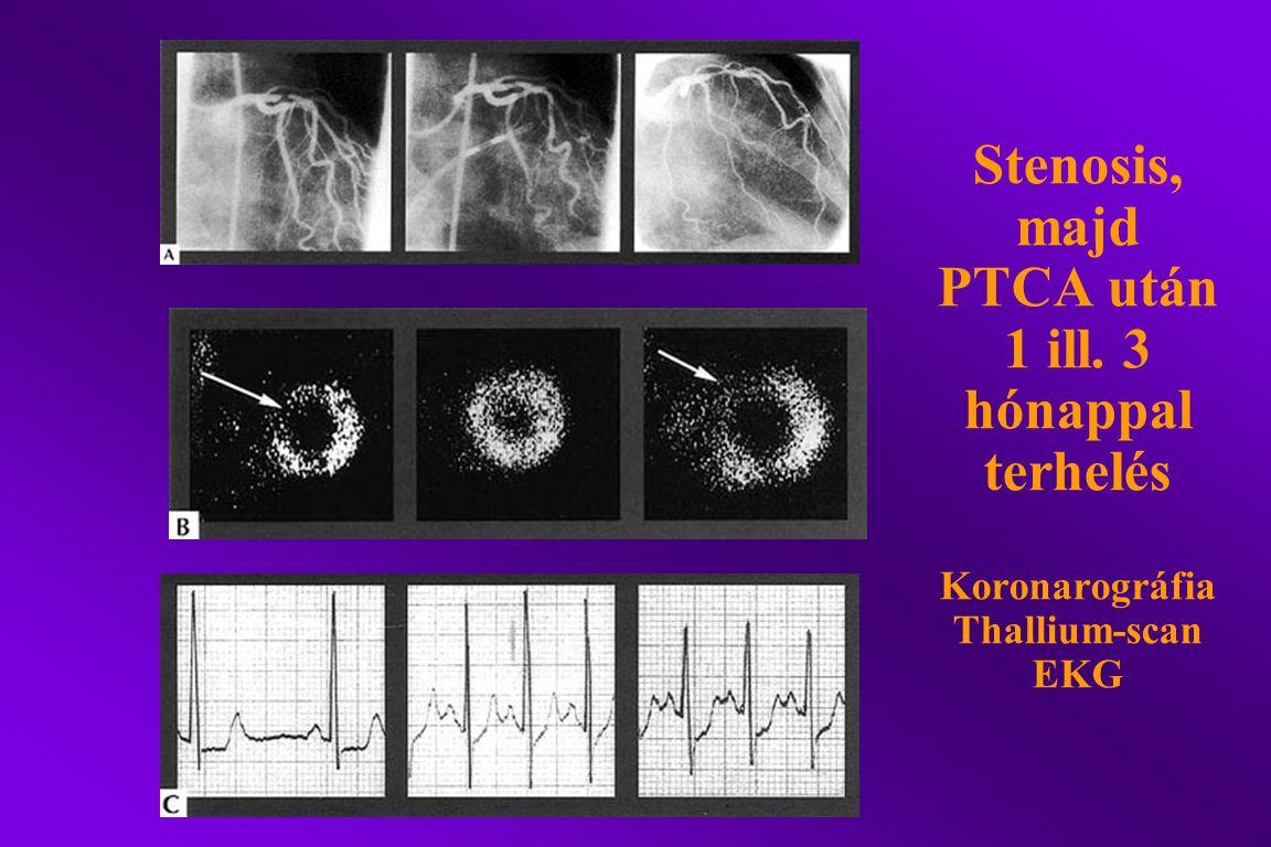 Stenosis, majd PTCA után 1 ill. 3 hónappal terhelés Koronarográfia Thallium-scan EKG