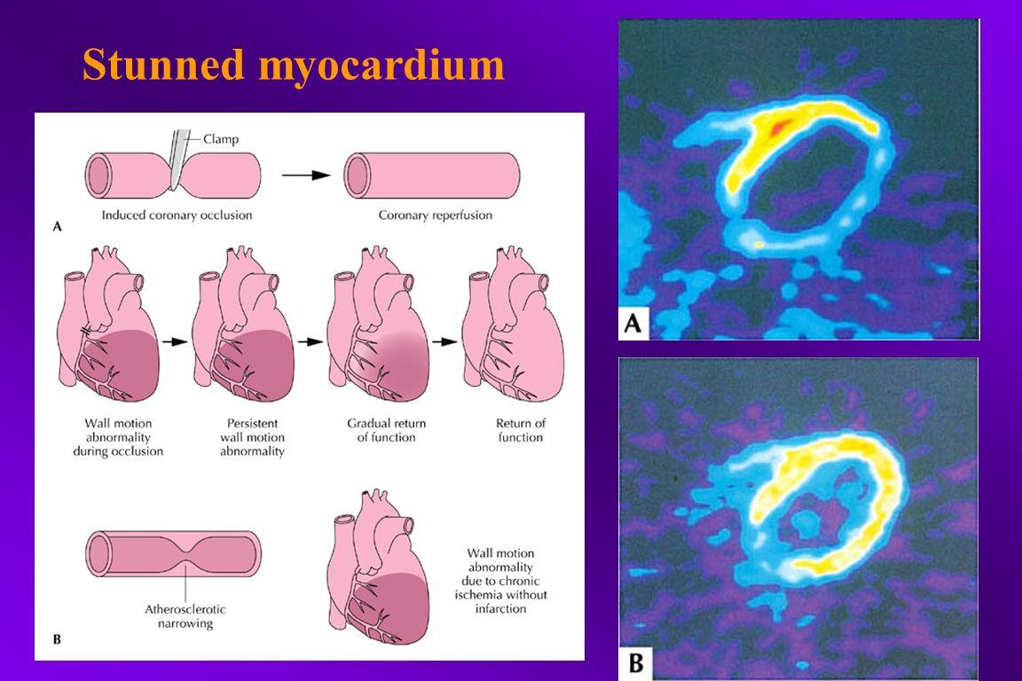 Stunned myocardium
