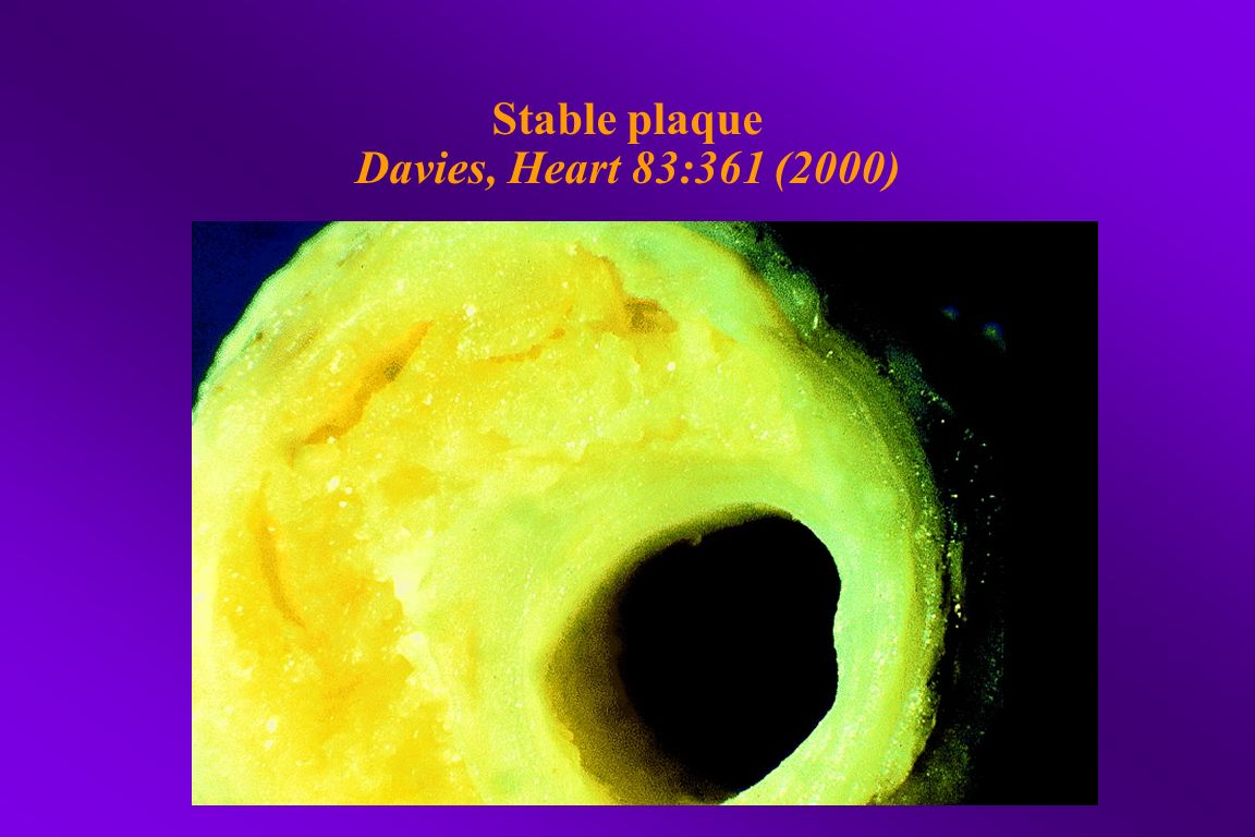 Stable plaque Davies, Heart 83:361 (2000)