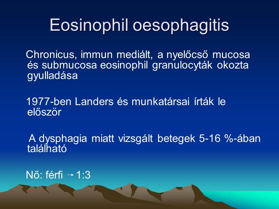 Eosinophil oesophagitis Chronicus, immun mediált, a nyelőcső mucosa és submucosa eosinophil granulocyták okozta gyulladása 1977-ben Landers és munkatársai írták le először A dysphagia miatt vizsgált betegek 5-16 %-ában található Nő: férfi 1:3