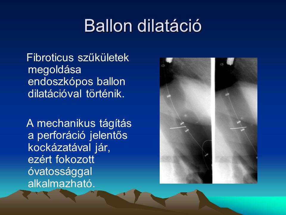 Ballon dilatáció Fibroticus szűkületek megoldása endoszkópos ballon dilatációval történik.