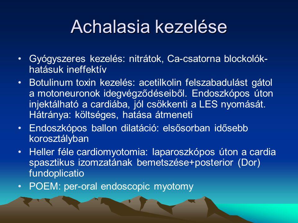 Achalasia kezelése Gyógyszeres kezelés: nitrátok, Ca-csatorna blockolók- hatásuk ineffektív Botulinum toxin kezelés: acetilkolin felszabadulást gátol a motoneuronok idegvégződéseiből.