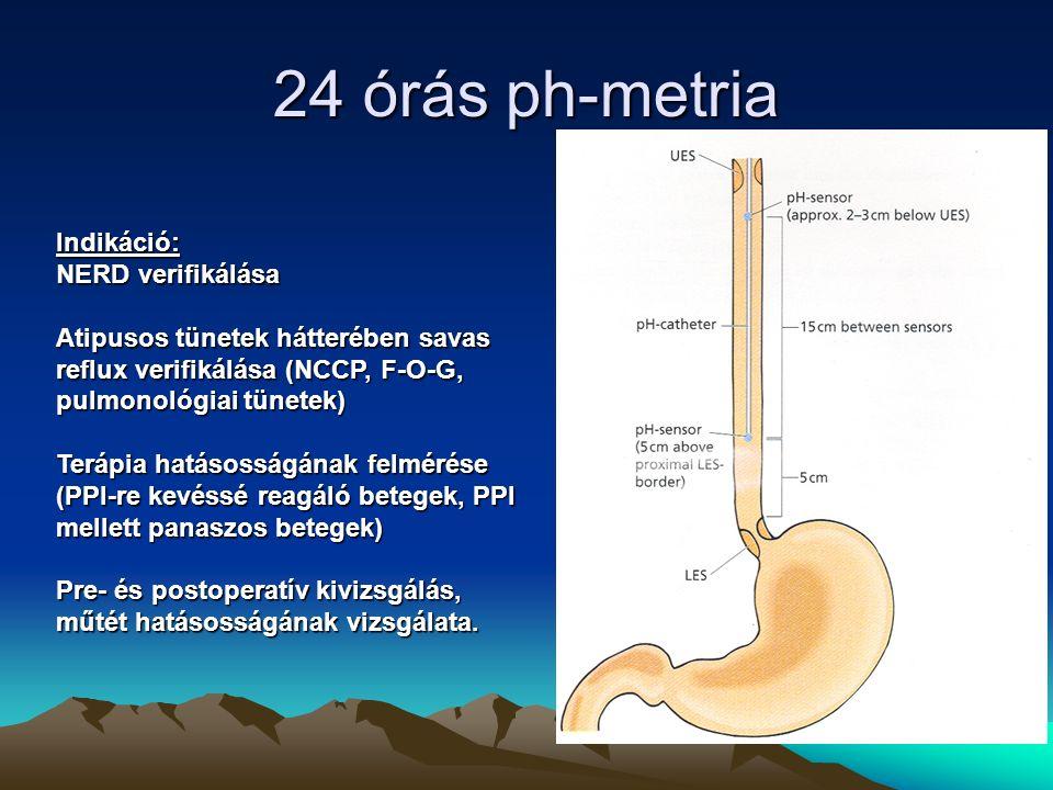 24 órás ph-metria Indikáció: NERD verifikálása Atipusos tünetek hátterében savas reflux verifikálása (NCCP, F-O-G, pulmonológiai tünetek) Terápia hatásosságának felmérése (PPI-re kevéssé reagáló betegek, PPI mellett panaszos betegek) Pre- és postoperatív kivizsgálás, műtét hatásosságának vizsgálata.