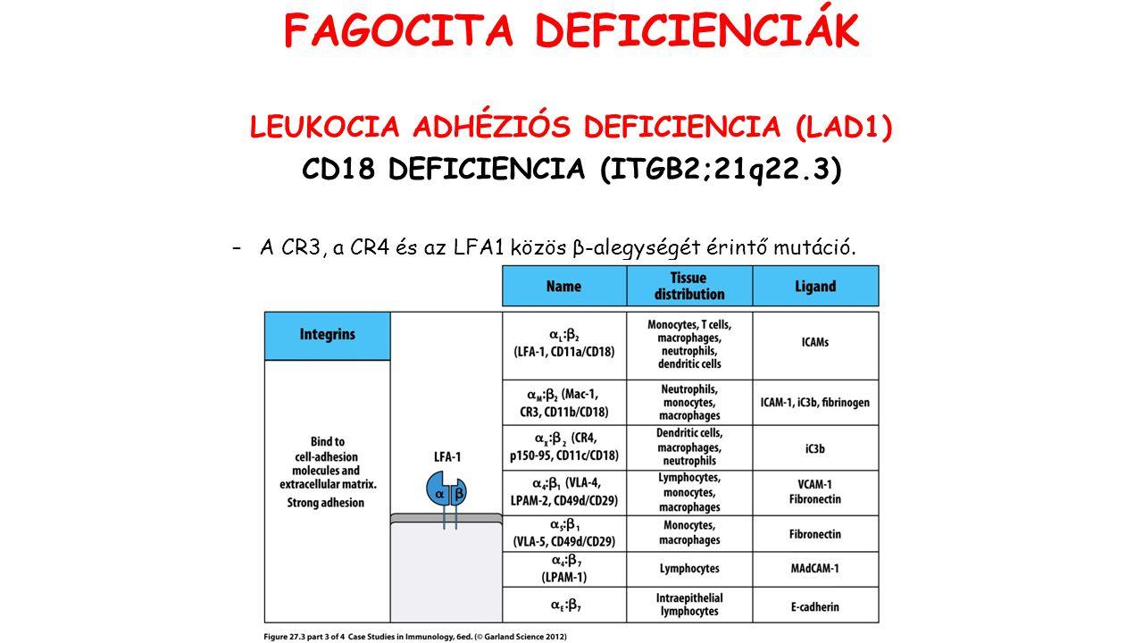 LEUKOCIA ADHÉZIÓS DEFICIENCIA (LAD1) CD18 DEFICIENCIA (ITGB2;21q22.3) –A CR3, a CR4 és az LFA1 közös β-alegységét érintő mutáció. FAGOCITA DEFICIENCIÁ