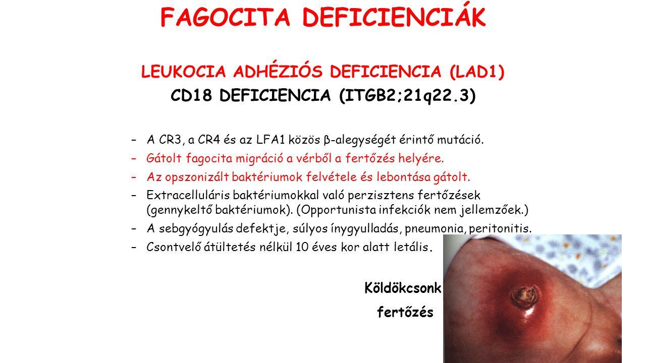 LEUKOCIA ADHÉZIÓS DEFICIENCIA (LAD1) CD18 DEFICIENCIA (ITGB2;21q22.3) –A CR3, a CR4 és az LFA1 közös β-alegységét érintő mutáció. –Gátolt fagocita mig