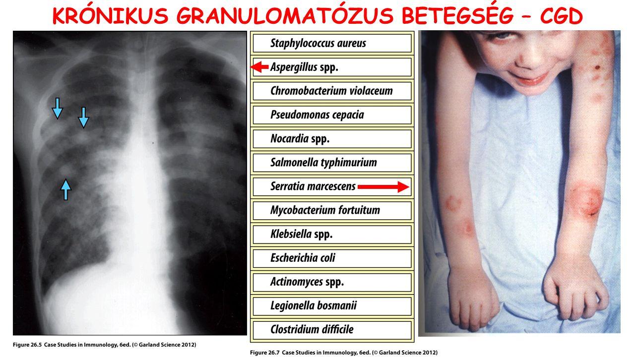 KRÓNIKUS GRANULOMATÓZUS BETEGSÉG – CGD