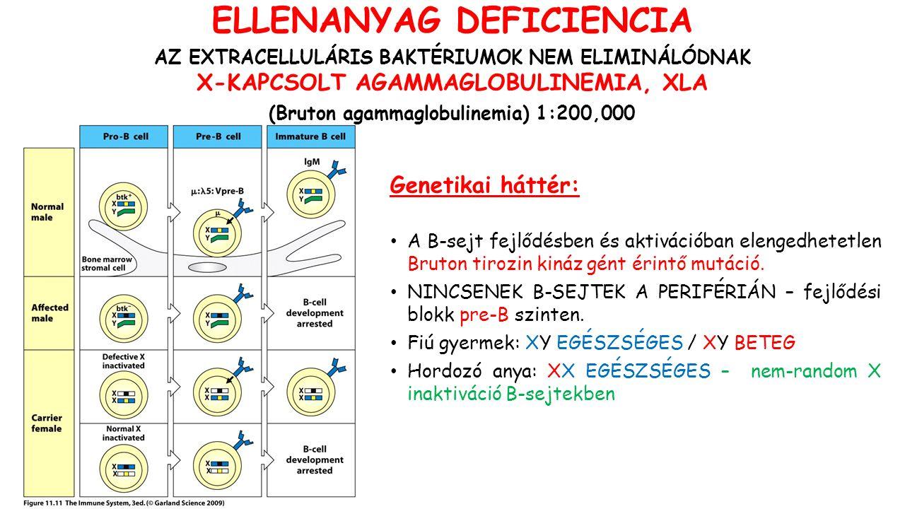 Genetikai háttér: A B-sejt fejlődésben és aktivációban elengedhetetlen Bruton tirozin kináz gént érintő mutáció.