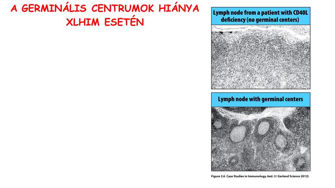 A GERMINÁLIS CENTRUMOK HIÁNYA XLHIM ESETÉN