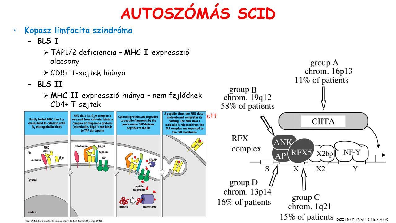 Kopasz limfocita szindróma –BLS I  TAP1/2 deficiencia – MHC I expresszió alacsony  CD8+ T-sejtek hiánya –BLS II  MHC II expresszió hiánya – nem fejlődnek CD4+ T-sejtek  Az adaptív immunitás minden folyamata érintett DOI: 10.1152/nips.01462.2003 AUTOSZÓMÁS SCID