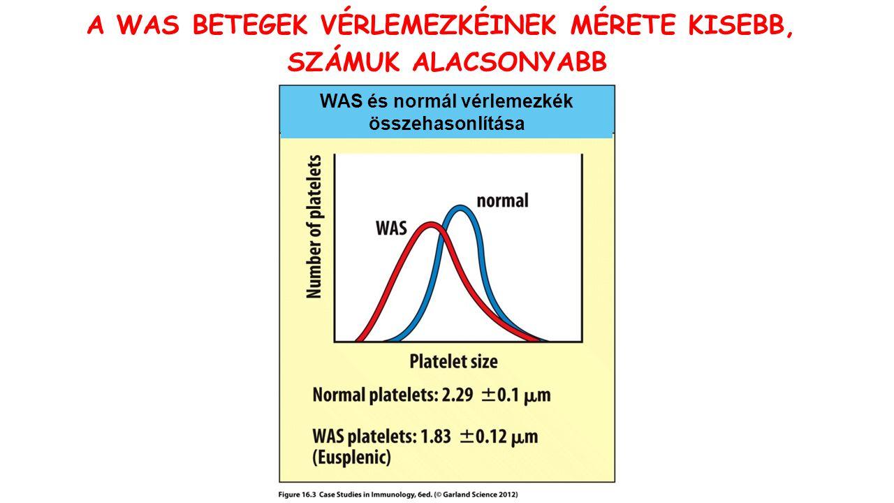 WAS és normál vérlemezkék összehasonlítása A WAS BETEGEK VÉRLEMEZKÉINEK MÉRETE KISEBB, SZÁMUK ALACSONYABB