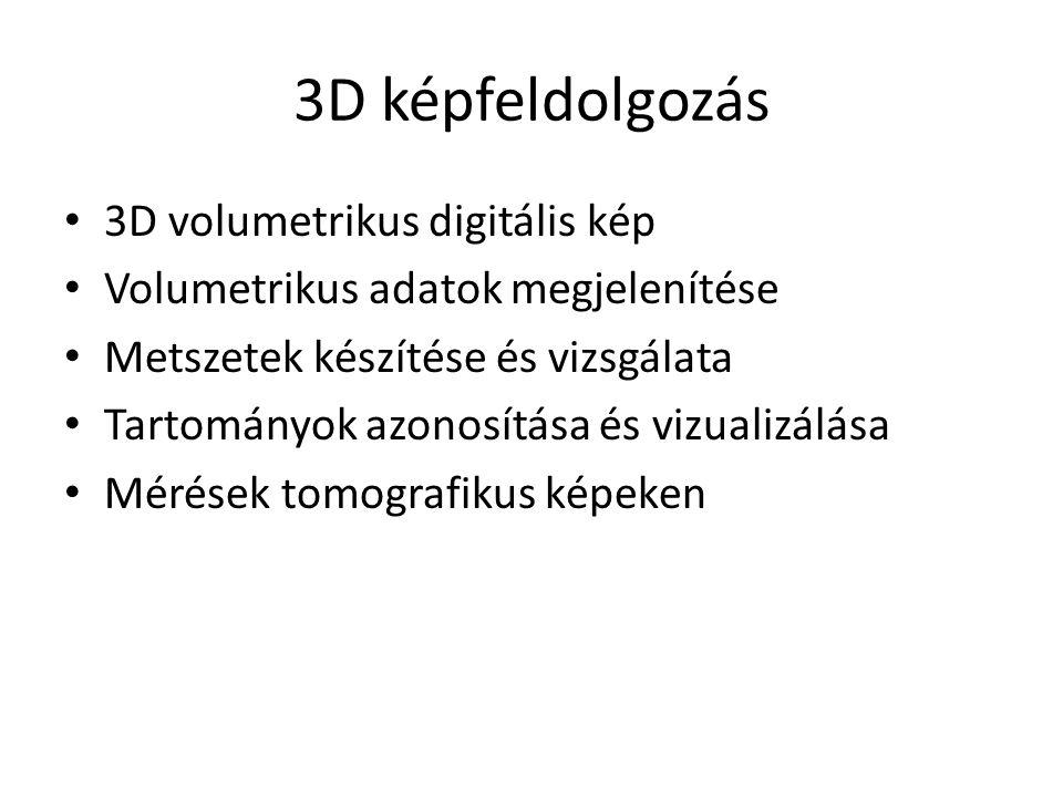 3D képfeldolgozás 3D volumetrikus digitális kép Volumetrikus adatok megjelenítése Metszetek készítése és vizsgálata Tartományok azonosítása és vizualizálása Mérések tomografikus képeken