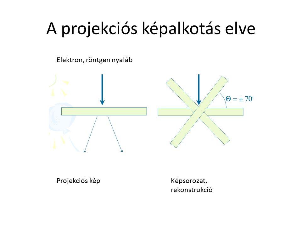 A projekciós képalkotás elve Elektron, röntgen nyaláb Projekciós képKépsorozat, rekonstrukció
