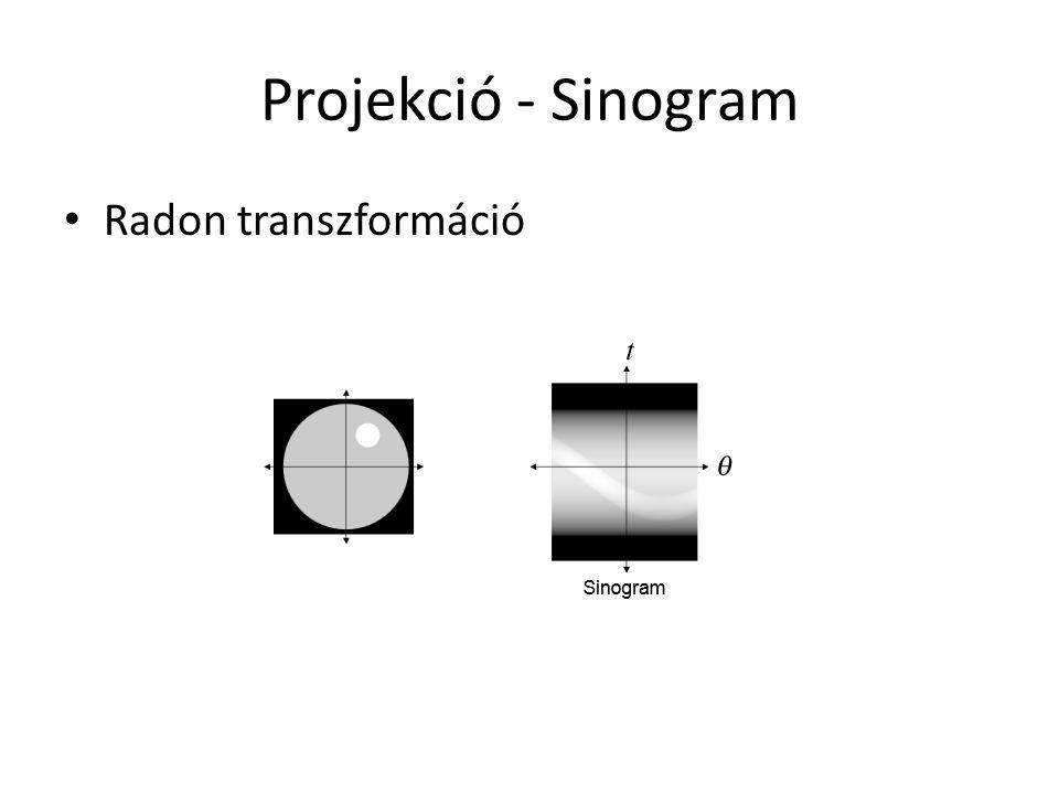 Projekció - Sinogram Radon transzformáció