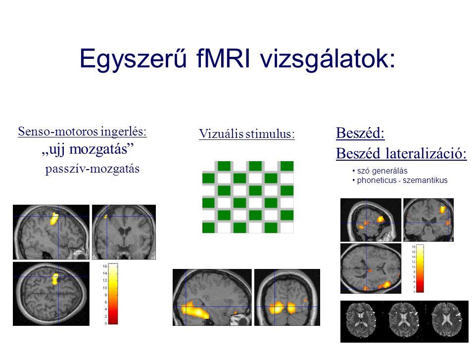 """Egyszerű fMRI vizsgálatok: Senso-motoros ingerlés: """"ujj mozgatás passzív-mozgatás Vizuális stimulus: Beszéd: Beszéd lateralizáció: szó generálás phoneticus - szemantikus"""
