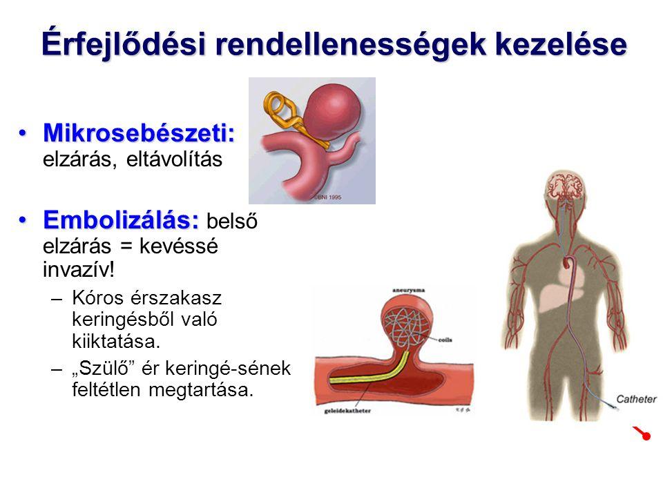 Érfejlődési rendellenességek kezelése Mikrosebészeti:Mikrosebészeti: elzárás, eltávolítás Embolizálás:Embolizálás: belső elzárás = kevéssé invazív.