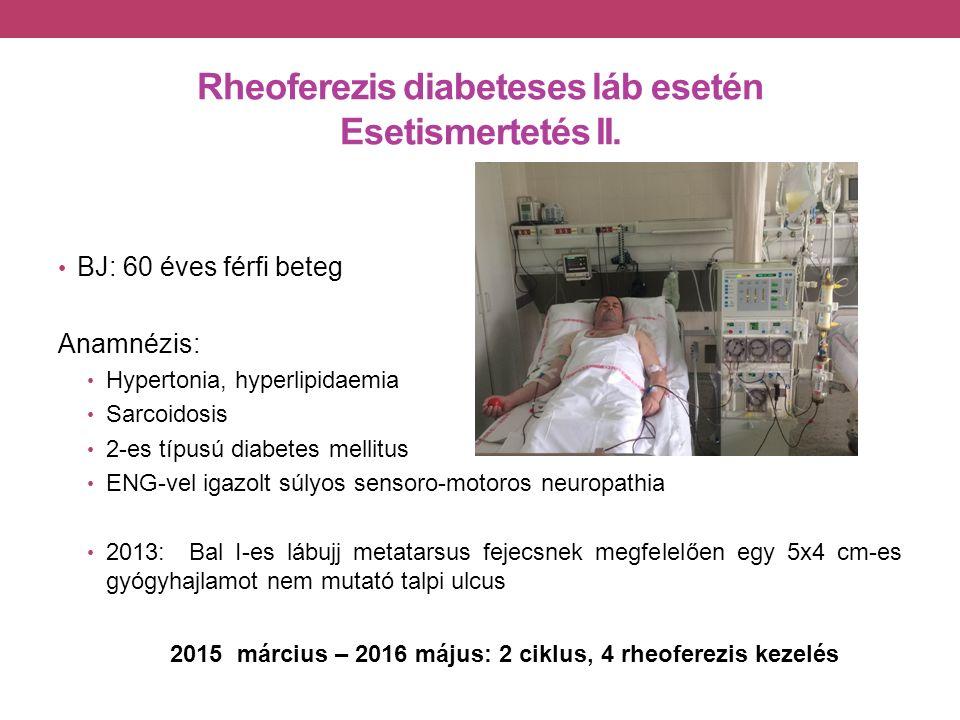 Rheoferezis diabeteses láb esetén Esetismertetés II.