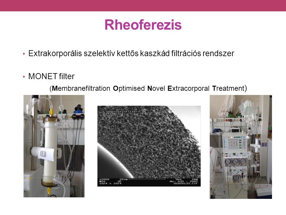 Rheoferezis Extrakorporális szelektív kettős kaszkád filtrációs rendszer MONET filter (Membranefiltration Optimised Novel Extracorporal Treatment )