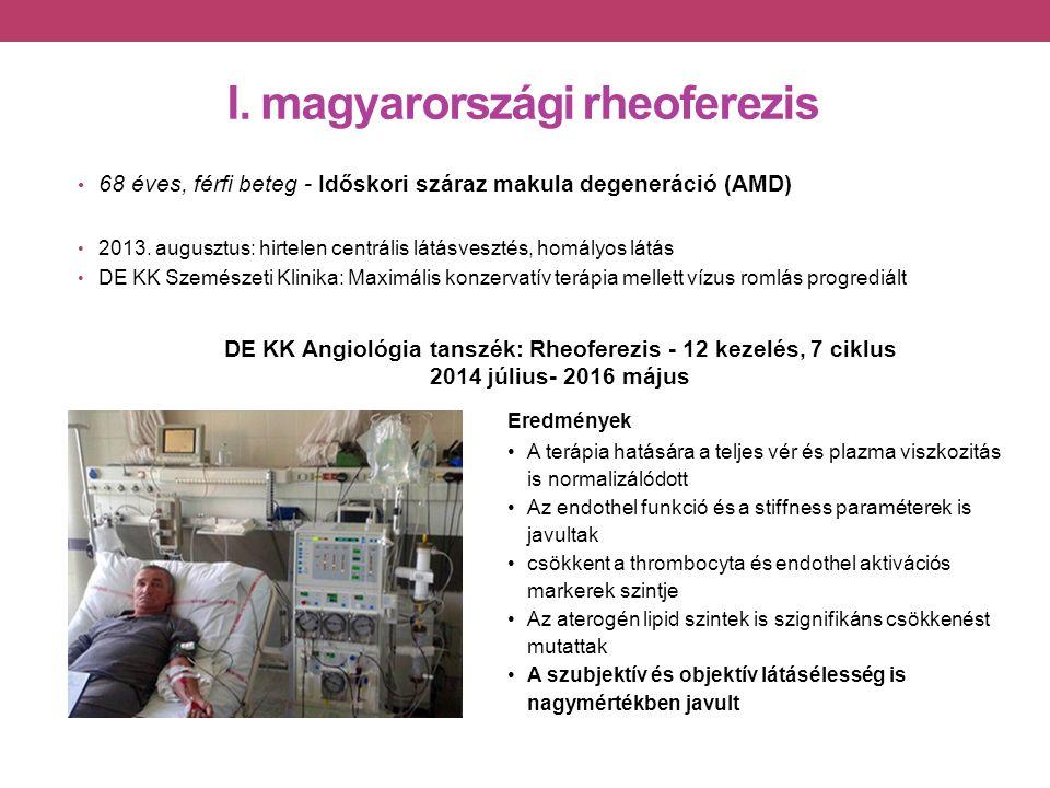 I. magyarországi rheoferezis 68 éves, férfi beteg - Időskori száraz makula degeneráció (AMD) 2013.