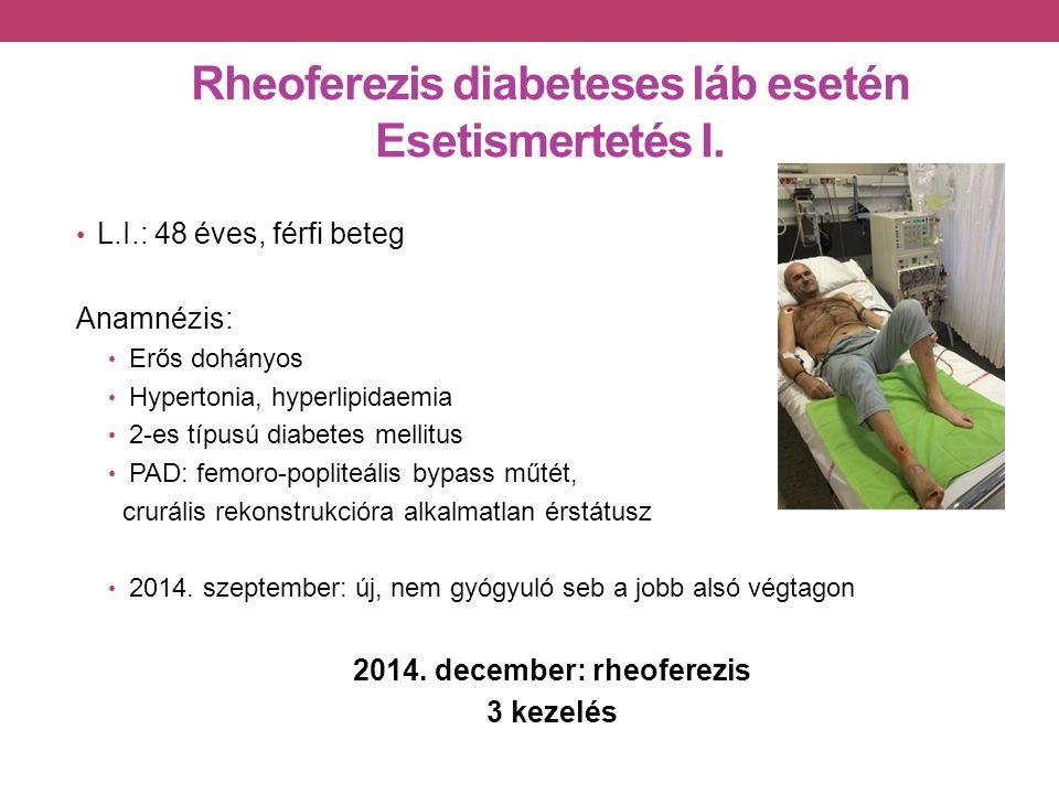 Rheoferezis diabeteses láb esetén Esetismertetés I.