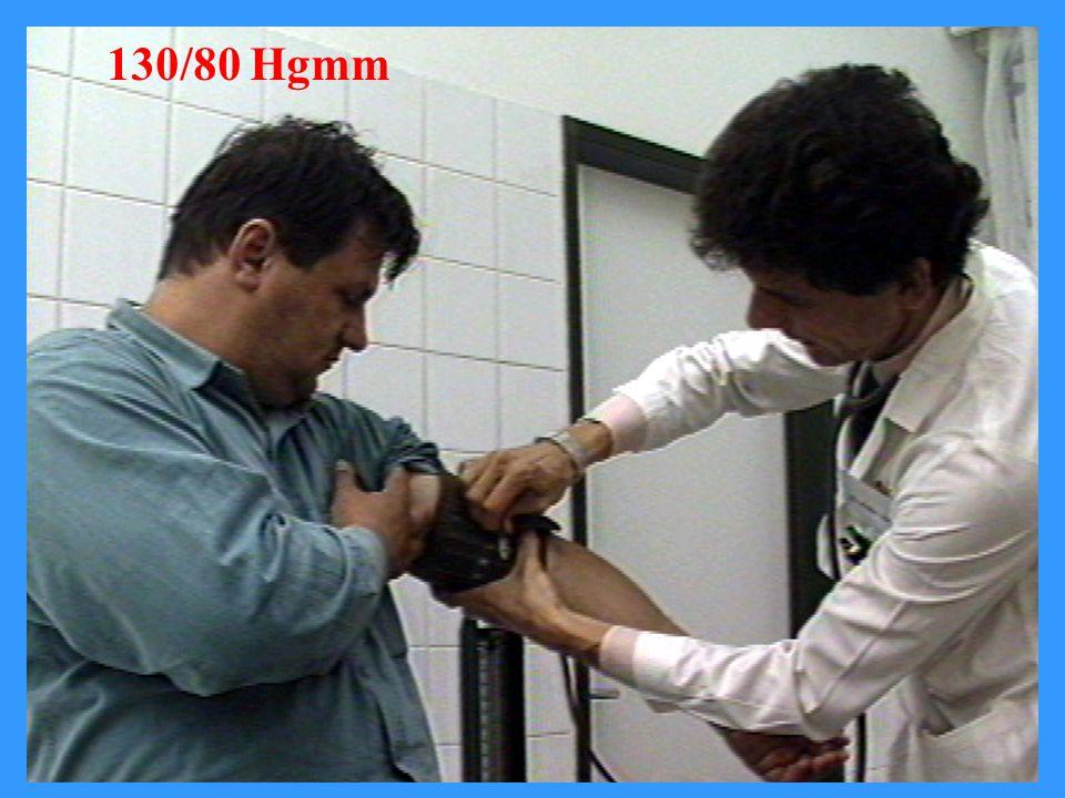 A mérsékelt testsúlycsökkenés előnyös hatása a vérnyomásra Testsúlycsökkenés (kg) Vérnyomásváltozás (Hgmm) szisztolésdiasztolés 6,3-13-9 Singh et al.
