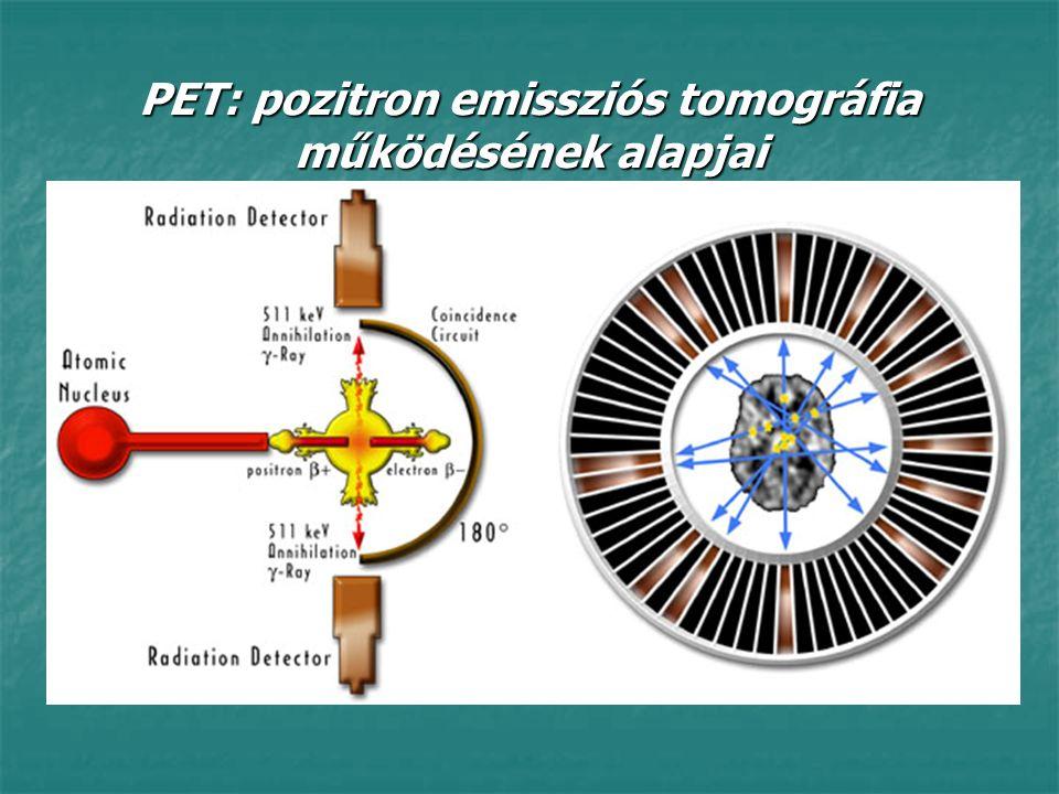 PET: pozitron emissziós tomográfia működésének alapjai