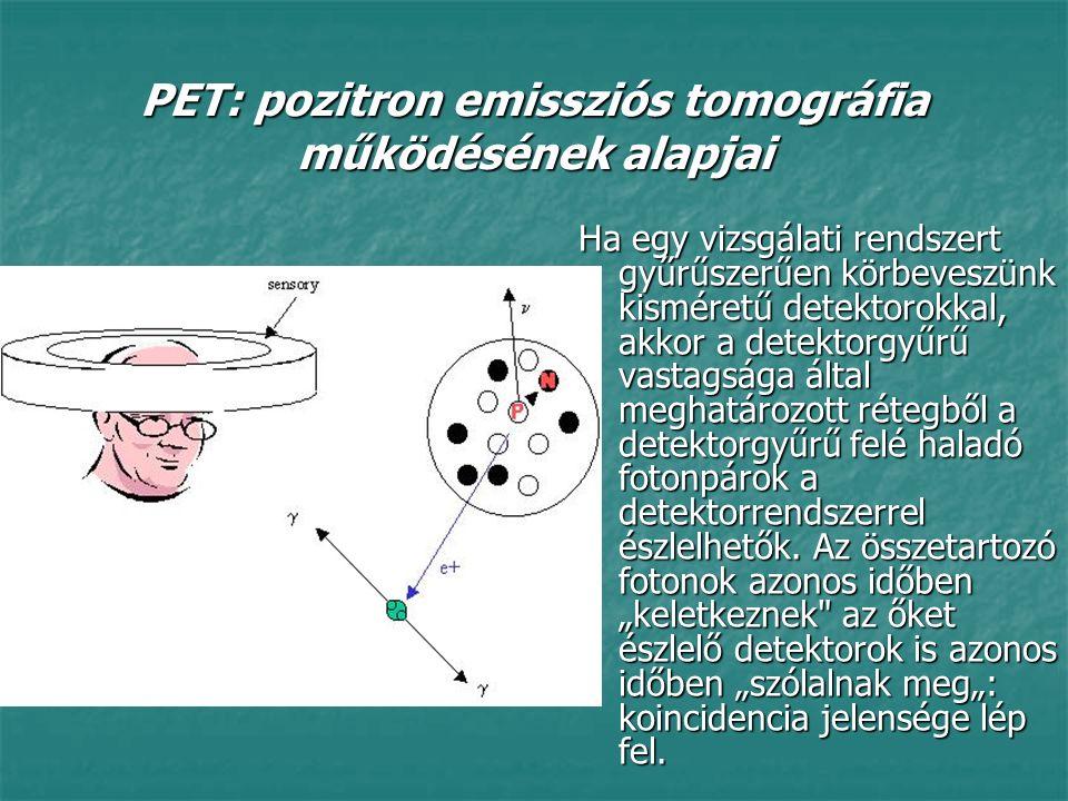 Ha egy vizsgálati rendszert gyűrűszerűen körbeveszünk kisméretű detektorokkal, akkor a detektorgyűrű vastagsága által meghatározott rétegből a detekto