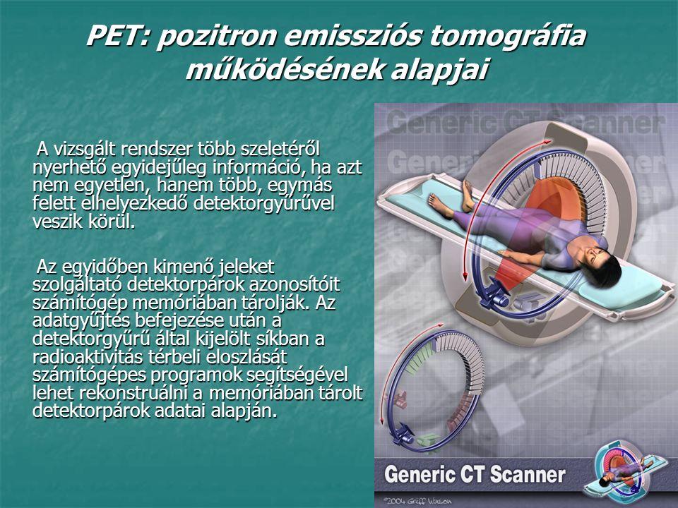 PET: pozitron emissziós tomográfia működésének alapjai A vizsgált rendszer több szeletéről nyerhető egyidejűleg információ, ha azt nem egyetlen, hanem