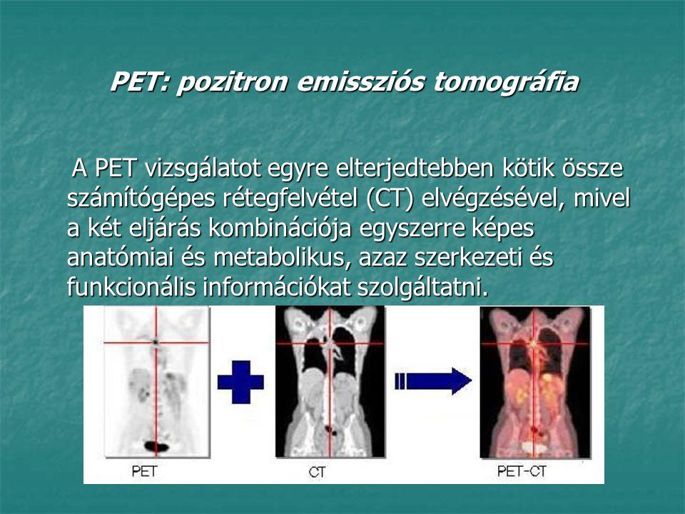 PET: pozitron emissziós tomográfia A PET vizsgálatot egyre elterjedtebben kötik össze számítógépes rétegfelvétel (CT) elvégzésével, mivel a két eljárá