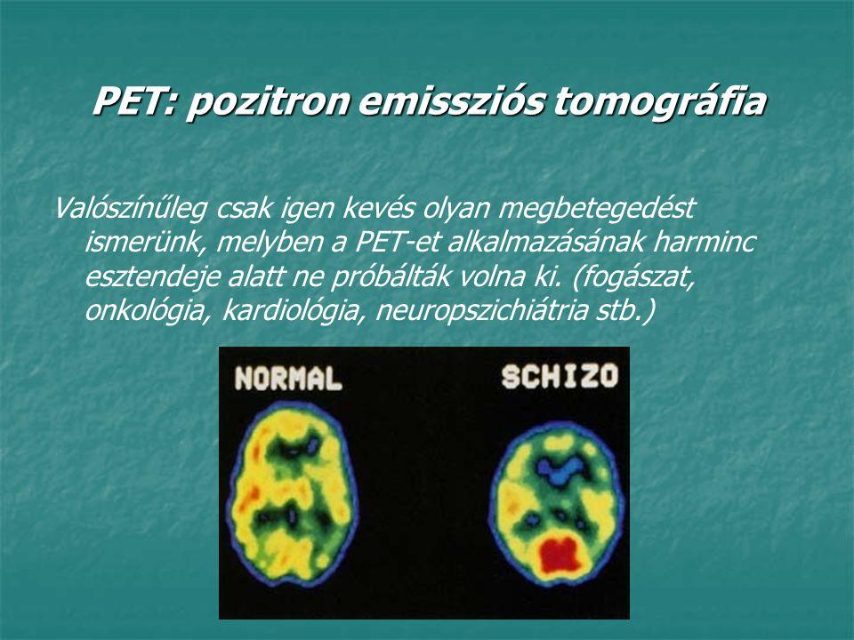PET: pozitron emissziós tomográfia Valószínűleg csak igen kevés olyan megbetegedést ismerünk, melyben a PET-et alkalmazásának harminc esztendeje alatt