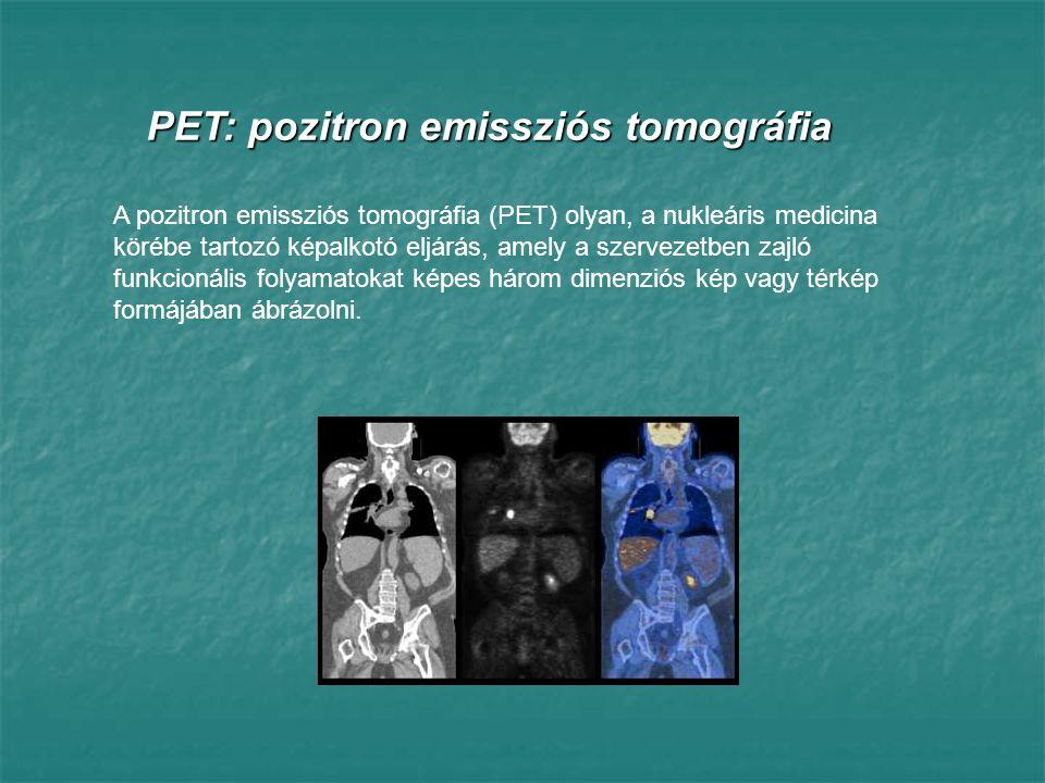 Pozitron: az elektron antirészecskéje, a legtöbb adata azonos vele, pozitív elemi töltése van az elektron antirészecskéje, a legtöbb adata azonos vele, pozitív elemi töltése vanEmisszió: pozitron kibocsátás pozitron kibocsátásTomográfia: síkmetszeti képek készítése az emberi testről síkmetszeti képek készítése az emberi testről PET: pozitron emissziós tomográfia